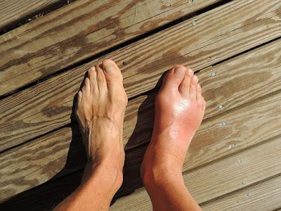 Patologi Sprain Ankle : Pengertian, Anatomi, Prevalensi, Tanda Gejala Ankle Sprain