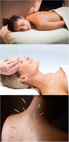 akupunktur uygulaması