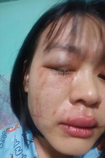 Đắk Nông: Vợ giáo viên tố chồng là Công An là mình bị đánh một cách dã man