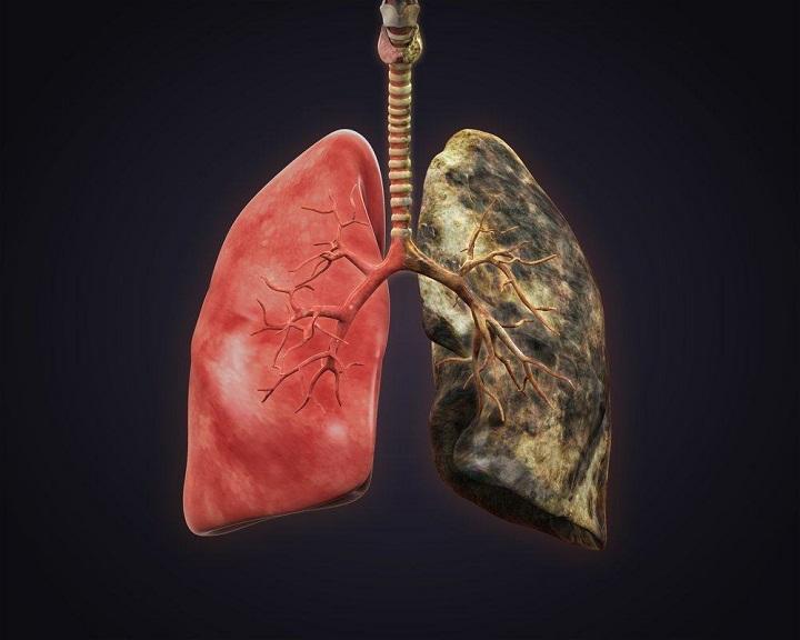 Ini Penyebab Kanker Paru Menjadi Kanker Paling Mematikan