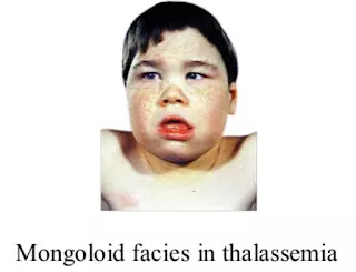 Mongoloid face in thalassemia