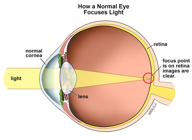 Eye Care and Vision: Refractive (= focussing) errors, and ...