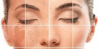 Dark Spots Treatment and Precautions - Articles for Women