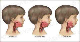 Mandibular Hypoplasia Overview, Symptoms, Causes, Diagnosis, Treatment, And Surgery