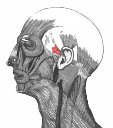 Imagen resaltada del músculo auricular anterior