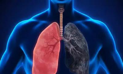 علاج جلطة الرئة بالأعشاب