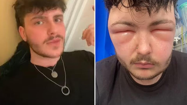 Не открыть глаза: у парня увеличилась голова из-за краски для волос