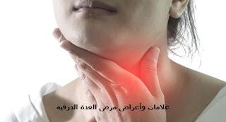علامات وأعراض مرض الغدة الدرقية