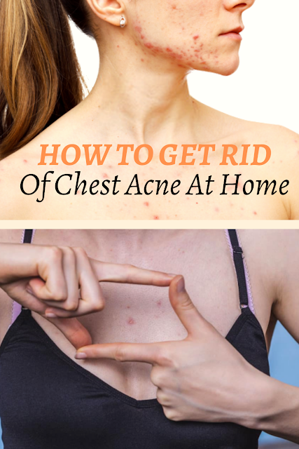 HOW TO GET RID OF CHEST ACNE AT HOME