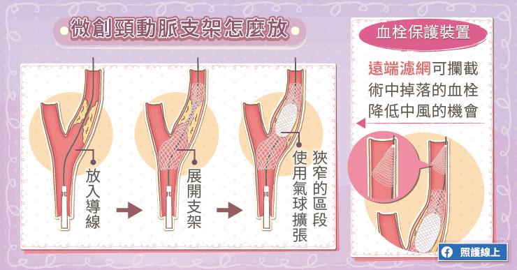 微創頸動脈支架怎麼放