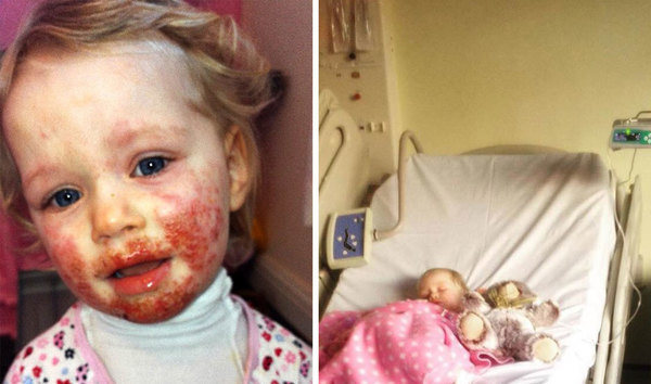 Daughter Gets Mysterious Sores on Her Face and No One Could Cure Her, Until Mother Recalls One Detail From 8 Months Ago