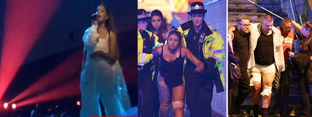 Picture of Ariana Grande before explosion and Injured Fans after the Explosion