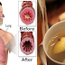 Treat Your Cough And Cold Immediately By Drinking This Simple Remedy