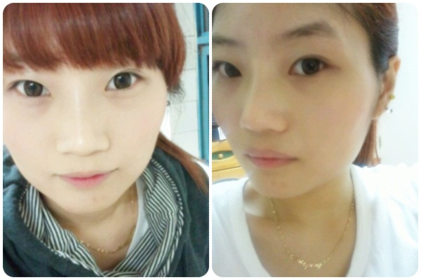 짱이뻐! - Got My Cleopatra Nose At Wonjin Plastic Surgery Clinic Seoul Korea