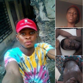 Lady allegedly pours acid on her ex-boyfriend in Uyo, Akwa Ibom (Photos)