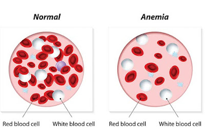 anemia homeopathy treatment in chennai