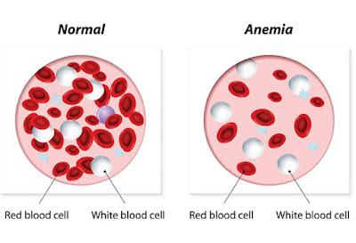 anemia homeopathy treatment in chennai