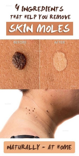 4 Ingredients that Help you Remove Skin Moles Naturally