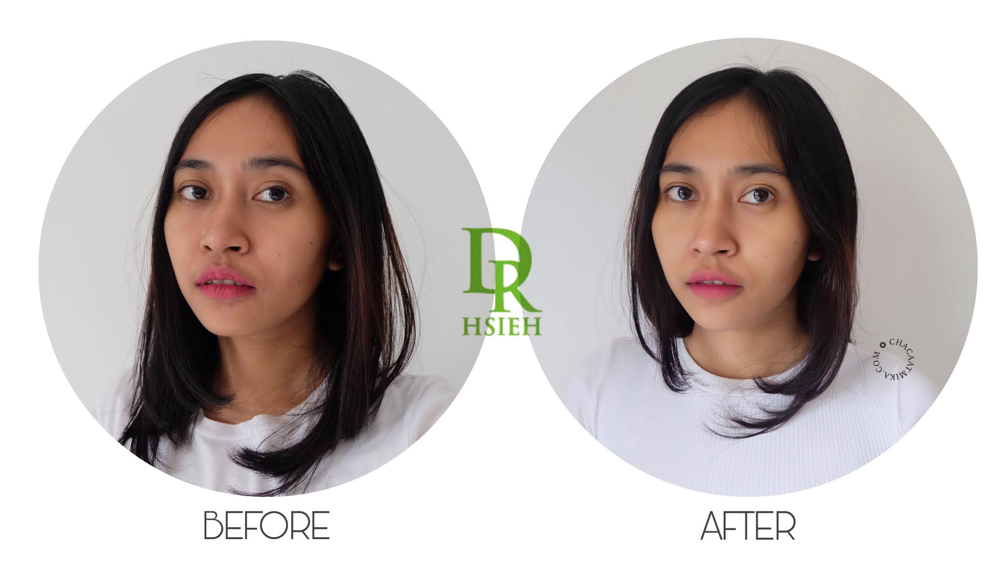 Before After Penggunaan Skin care Dr. Hsieh