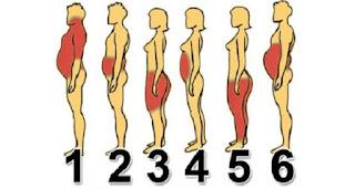 obesite corps