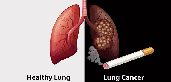 Here's 7 Lung Cancer Symptoms and Signs