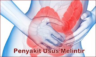 http://nugraha021212.blogspot.co.id/2017/07/pengobatan-alami-mengatasi-usus-melintir.html