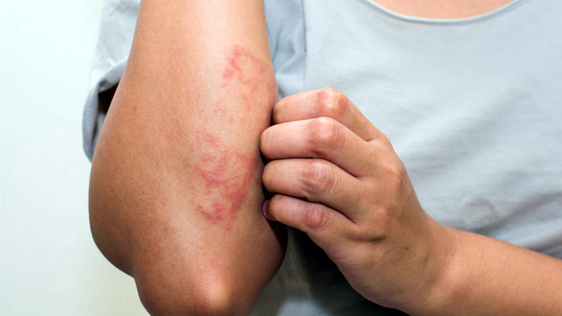 5 Causes of Hives You Wouldn't Expect
