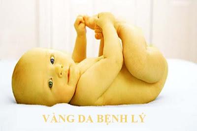vang-da-benh-ly