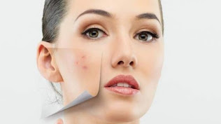 Beberapa Jenis Flek di Wajah dan Cara Menghilangkannya