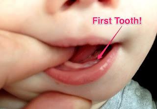 gambar gusi bayi mau tumbuh gigi