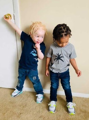 You won't believe these black and albino boys are twins... as mom confirms people NEVER BELIEVE