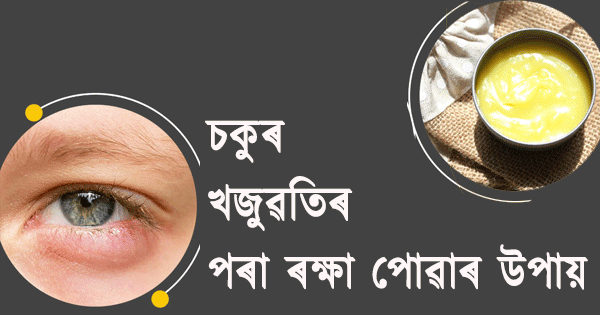 home remedies to relief eye itching