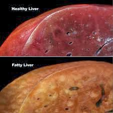 how to tell if you have a fatty liver