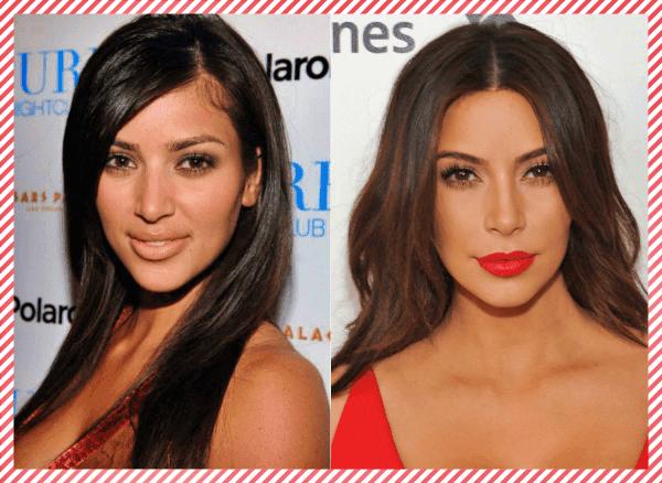 Kim Kardashian Estetik Öncesi ve Sonrası