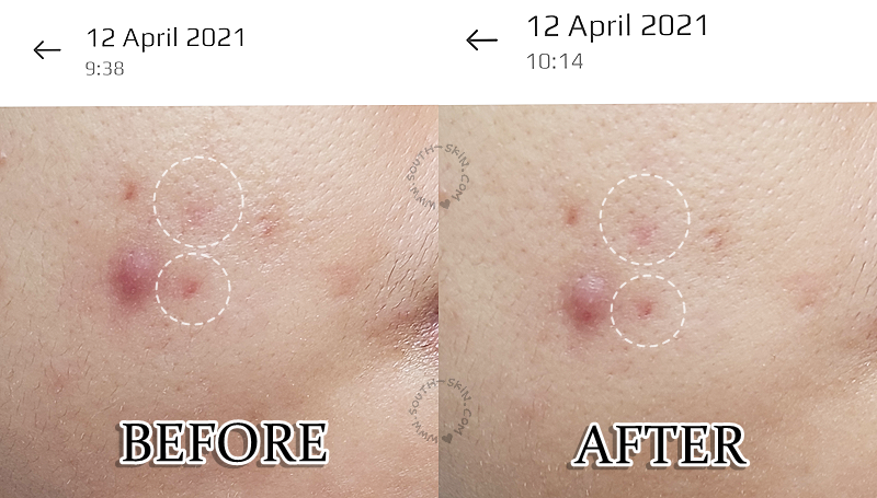 before-after-pemakaian-ufo-2