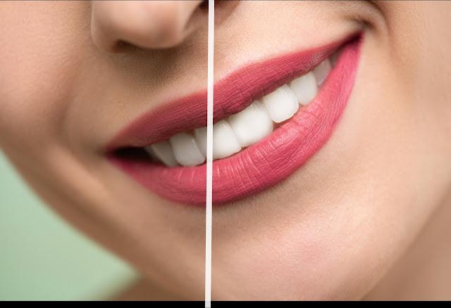 jak wybielić zęby sodą