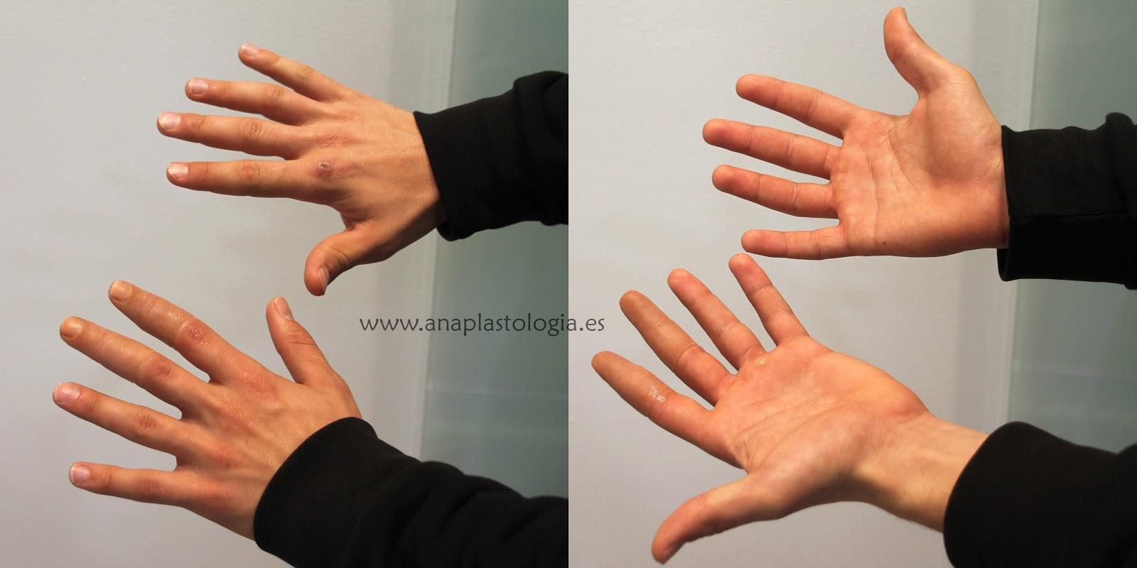 Anaplastologia: Prótesis de dedo