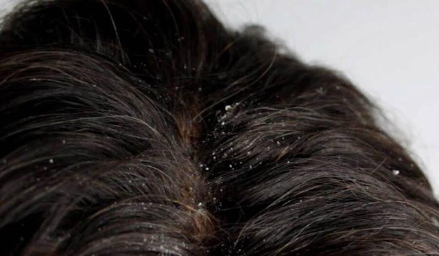 hair loss, Hair Care, Hair Treatment,