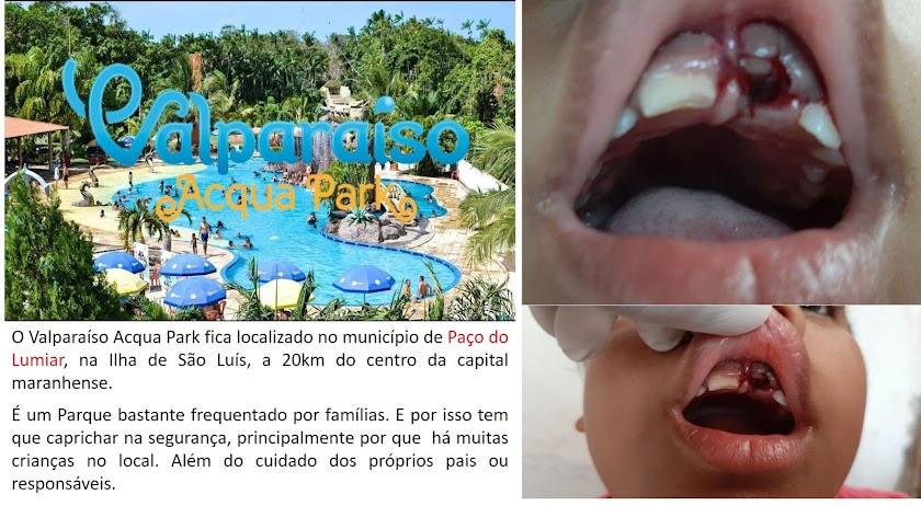 Criança sofre acidente no Valparaíso Acqua Park e é socorrida em Uber. O parque não tem salva-vidas nem ambulância