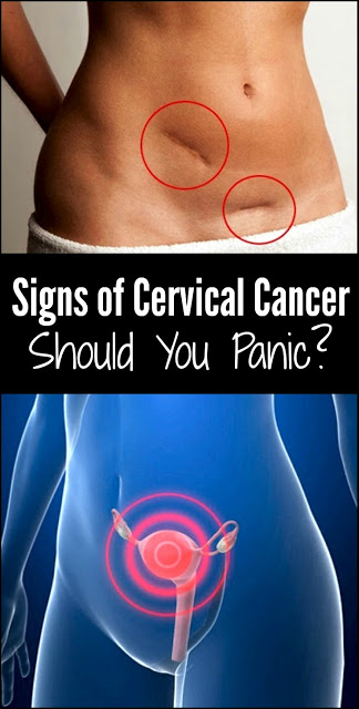 Signs of Cervical Cancer: Should You Panic?