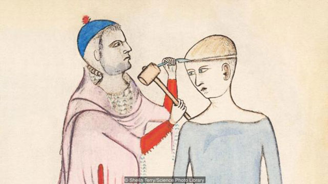 Lukisan trepanation oleh Guido da Vigevano