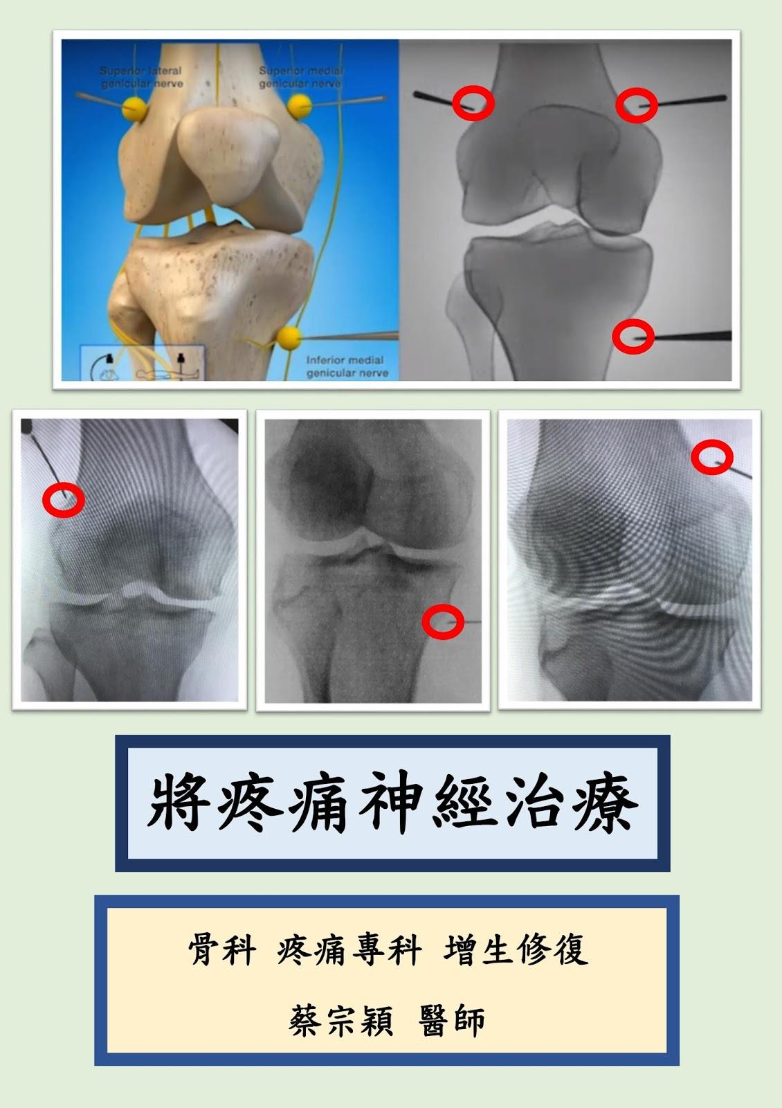蔡宗穎 醫師 │ 骨科 疼痛 熱凝 增生注射