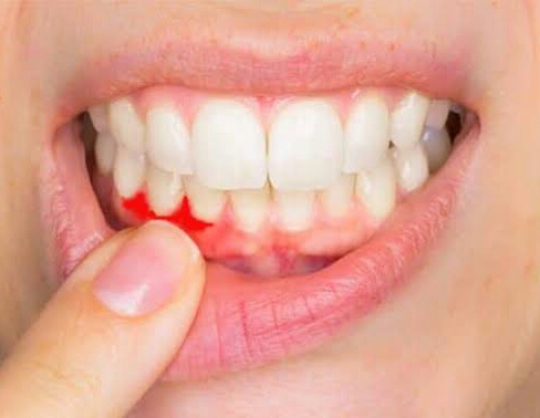 Penyebab gusi sering berdarah dan cara mencegahnya