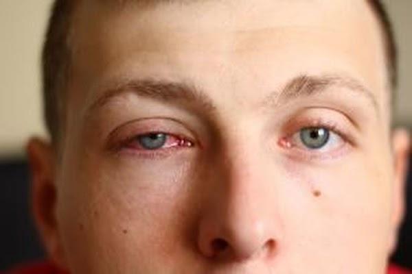 Waspadai.Penyakit.Mata.Merah.yang.Sangat.Menular?