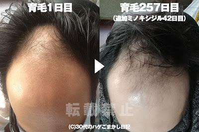 2017年2月14日の頭皮