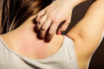 gereizte Haut bei Allergie gegen Formaldehyd