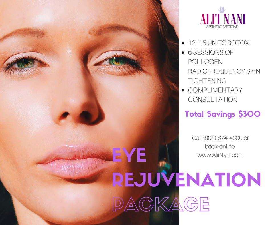 Treatment for Tired Looking Eyes & Crows Feet, botox, pollogen radiofrequency skin tightening
