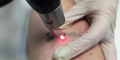TATTOO REMOVAL INK , AFTER-CARE INSTRUCTIONS