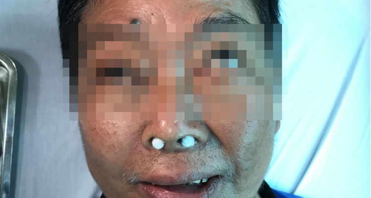 Viêm xoang biến chứng có thể gây mù và tử vong