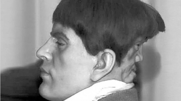 Edward Mordrake, el hombre con dos caras